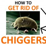 How to Get Rid of Chigger Bugs (Naturally)