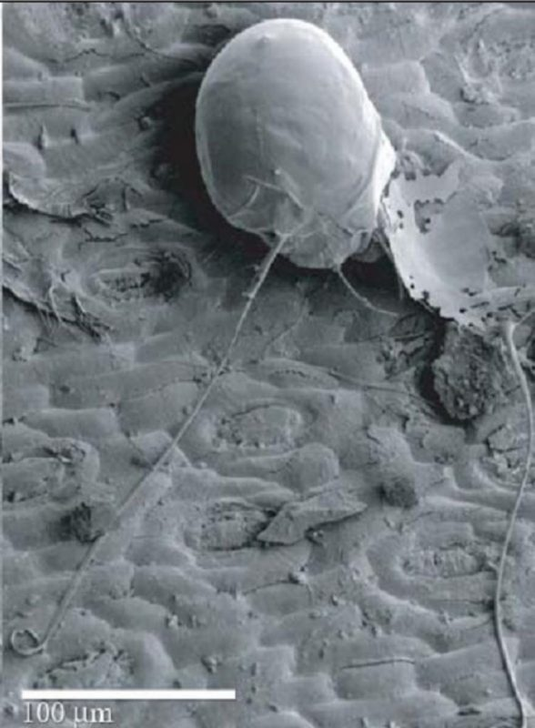 Dust mites on phone.